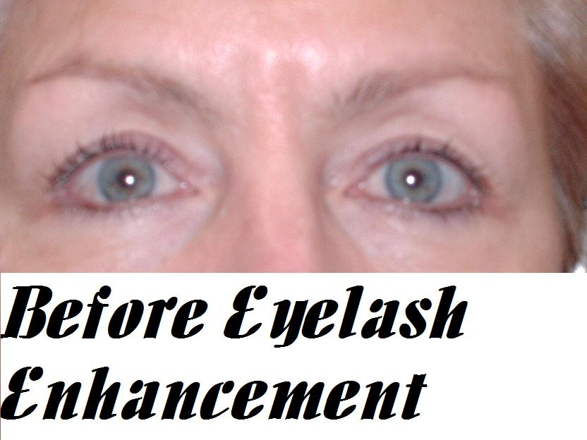 Before Eyelash Enhancement