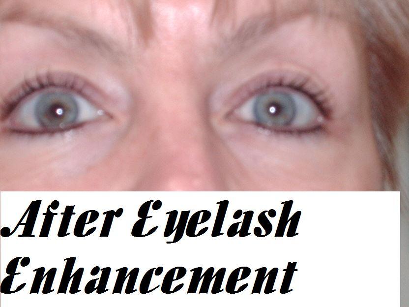 After Eyelash Enhancement
